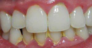 dientes con sarro