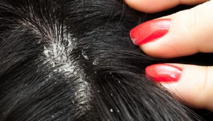 Los medios para el crecimiento del refuerzo y la reconstitución de los cabello