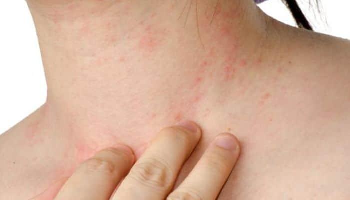 Alergia por aceite de rosa mosqueta