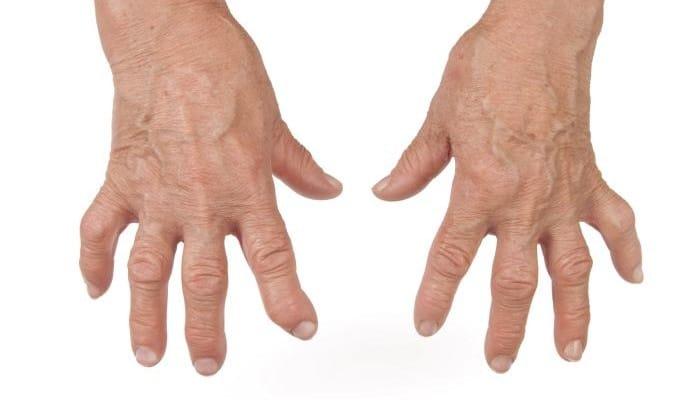 medicina natural para artritis muy efectiva
