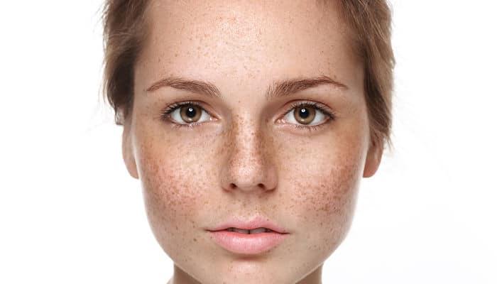 manchas en la piel mas frecuentes