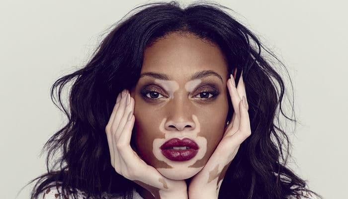 causa de vitiligo