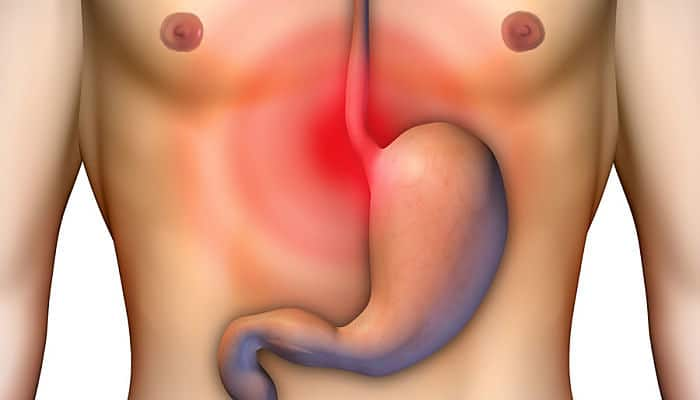 como quitar el ardor de estomago