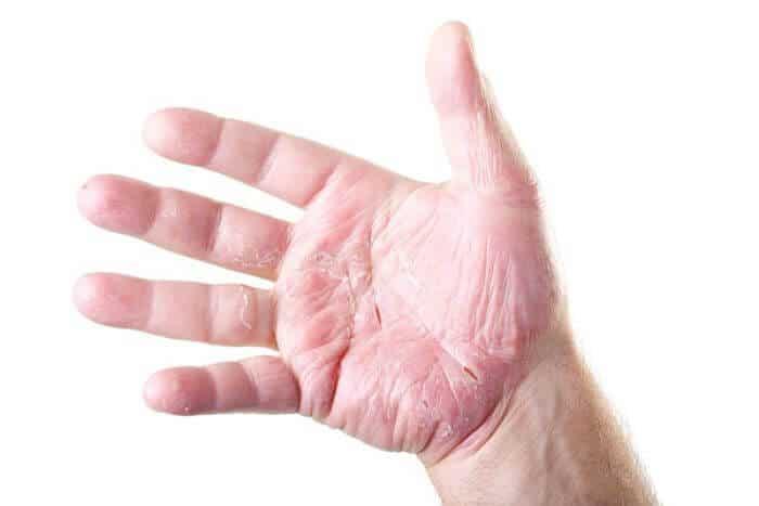 Que tal la eccema la psoriasis atopichesky la dermatitis