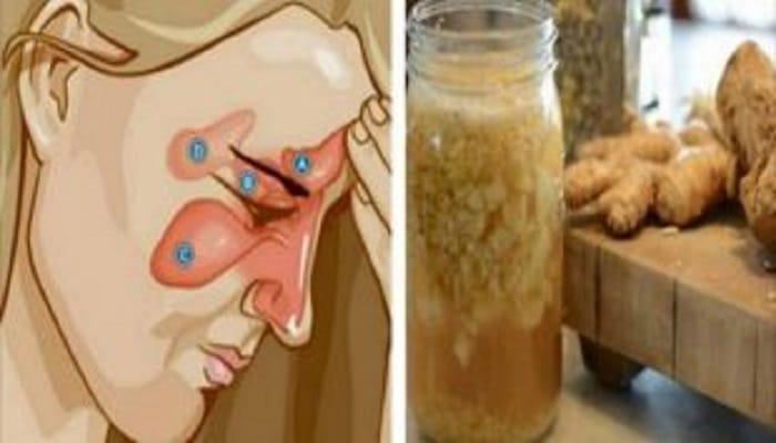 remedios-caseros-para-la-rinitis-5