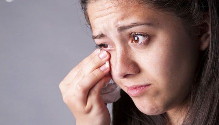 Remedios Caseros Para Ojos Secos Naturales