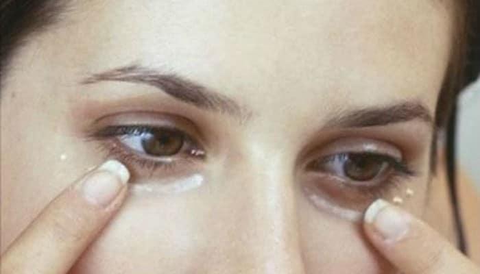Remedios Caseros Para Bolsas en los Ojos Naturales