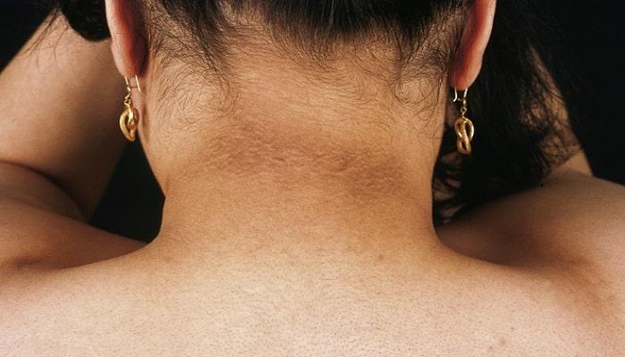 las manchas en el cuello