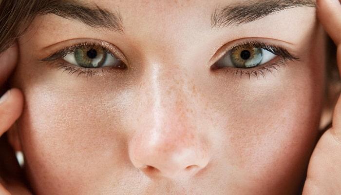 deshacerse de los poros dilatados