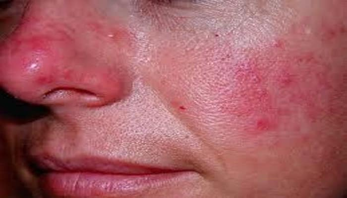 eliminar el enrojecimiento de la cara
