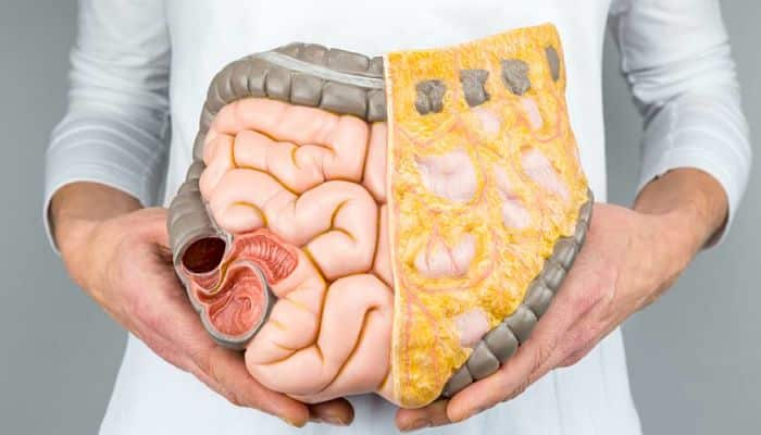 enfermedad crohn